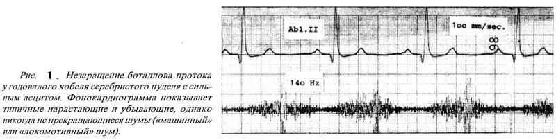 В днепропетровске лечение астигматизма